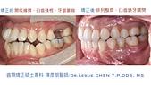xuite2018:xuite20180524:開咬擁擠大臼齒缺牙關閉.003.jpeg