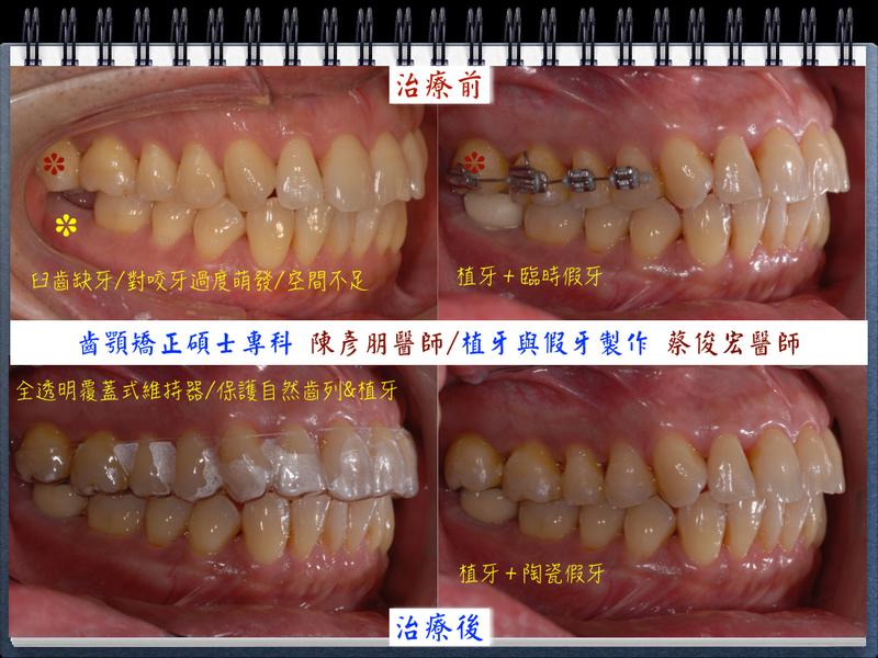 2014 病例集:20140804王邦威.001.jpg