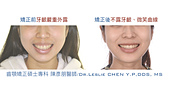 xuite2017:xuite20170829:下顎後縮笑齦暴牙.002.jpeg