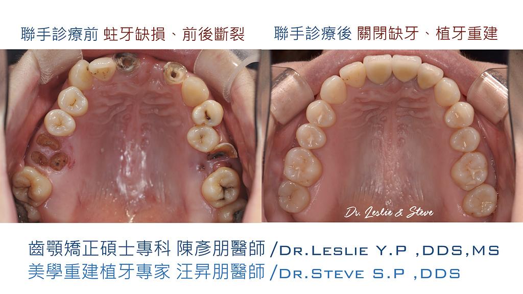 xuite2018:xuite20180101:多顆缺牙:跨科治療.006.jpeg