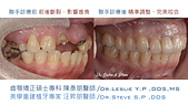 xuite2018:xuite20180101:多顆缺牙:跨科治療.004.jpeg