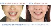 xuite2018:xuite20180524:開咬擁擠大臼齒缺牙關閉.006.jpeg