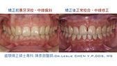 xuite2017:xuite20170829:下顎後縮笑齦暴牙.004.jpeg