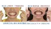 xuite2018:xuite20180101:舌側錯咬中線歪.002.jpeg