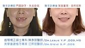 xuite2018:xuite20180101:多顆缺牙:跨科治療.001.jpeg
