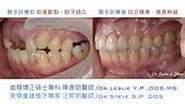 xuite2018:xuite20180101:多顆缺牙:跨科治療.005.jpeg