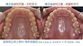 xuite2017:xuite20170829:下顎後縮笑齦暴牙.007.jpeg