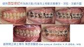 xuite2017:xuite20170829:下顎後縮笑齦暴牙.009.jpeg