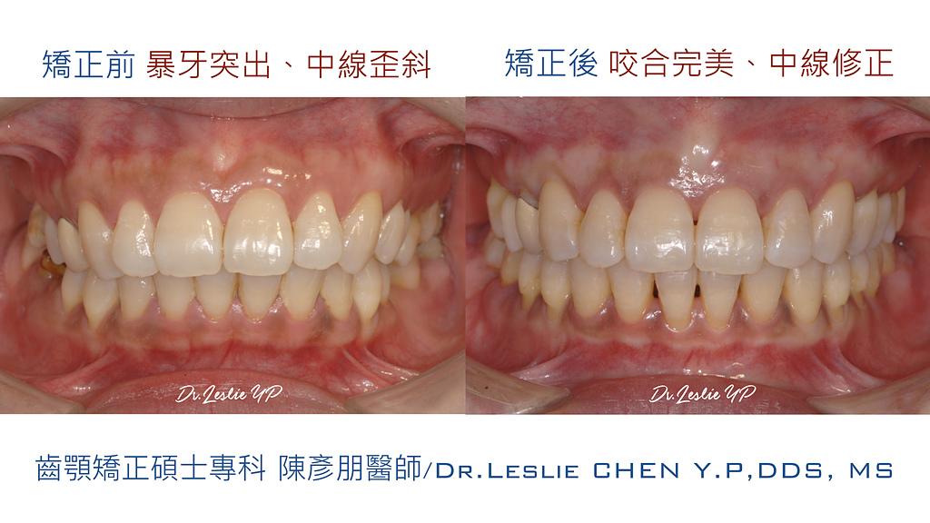 xuite2018:xuite20181220:暴牙大臼齒缺牙關閉.001.jpeg