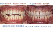 xuite2018:xuite20180524:開咬擁擠大臼齒缺牙關閉.001.jpeg