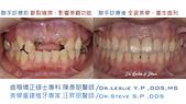 xuite2018:xuite20180101:多顆缺牙:跨科治療.003.jpeg